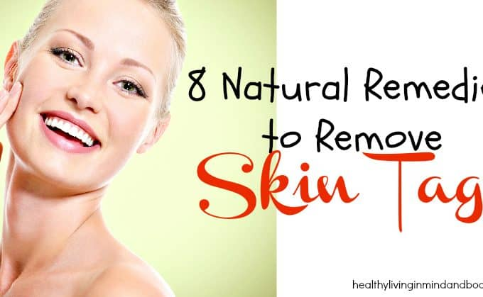 8 Natural Remedies to Remove Skin Tags