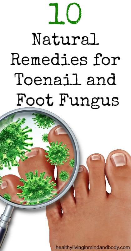 10 Natural Remedies for Toenail and Foot Fungus