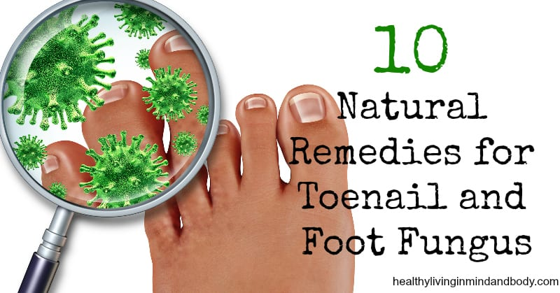 10 Natural Remedies for Toenail and Foot Fungus | Healthy Living In ...